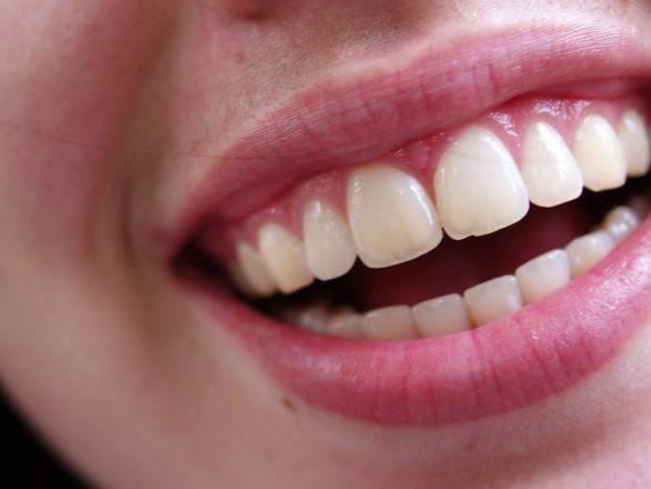 歯垢と歯石は違いがあるの?つかないようにする方法