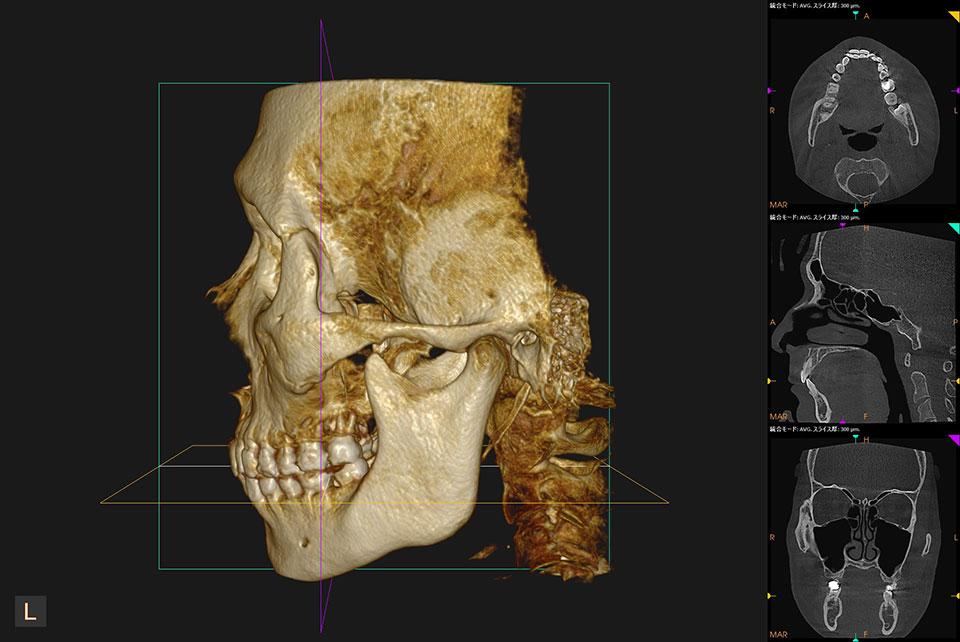 新たな歯科用CTを設置しました